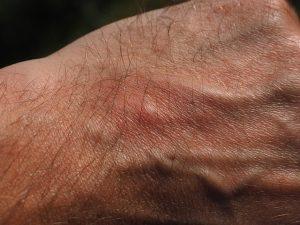 mengapa gigitan nyamuk menimbulkan bentol?
