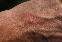 mosquito-bite-2117421_640